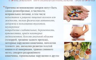 Хронический запор: причины, лечение, профилактика