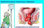 Кровь при запоре: причины, заболевания, лечение